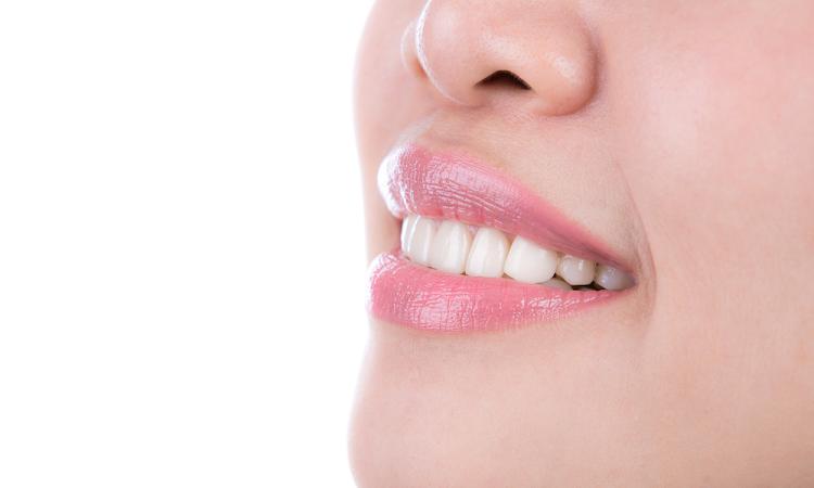 diseno-sonrisa-tratamiento-dental